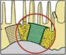 Втулки для восстановления резьбы